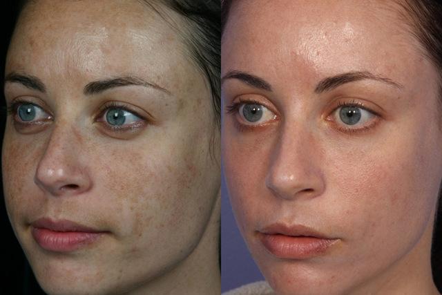 Удаление пигментных пятен на лице: лазером, лазерное