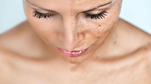 Как удалить пигментные пятна на лице: темные, коричневые
