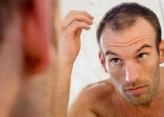 Как убрать залысины на лбу у мужчин: избавиться