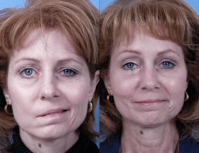 Невропатия лицевого нерва: лечение, причины, симптомы, острая