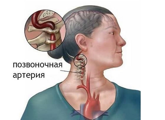 Сужение сосудов шейного отдела позвоночника: шеи, симптомы и лечение